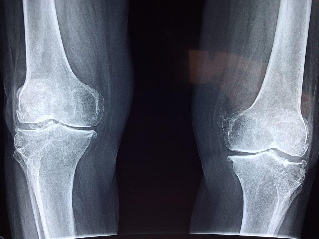 Diamo un Calcio all'Osteoporosi!